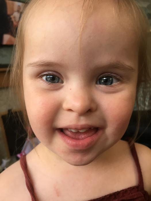 THANKS TO FABULOUS FUNDRAISERS LITTLE LOWRI CAN TRAVEL IN SAFETY AND FREE OF PAIN
